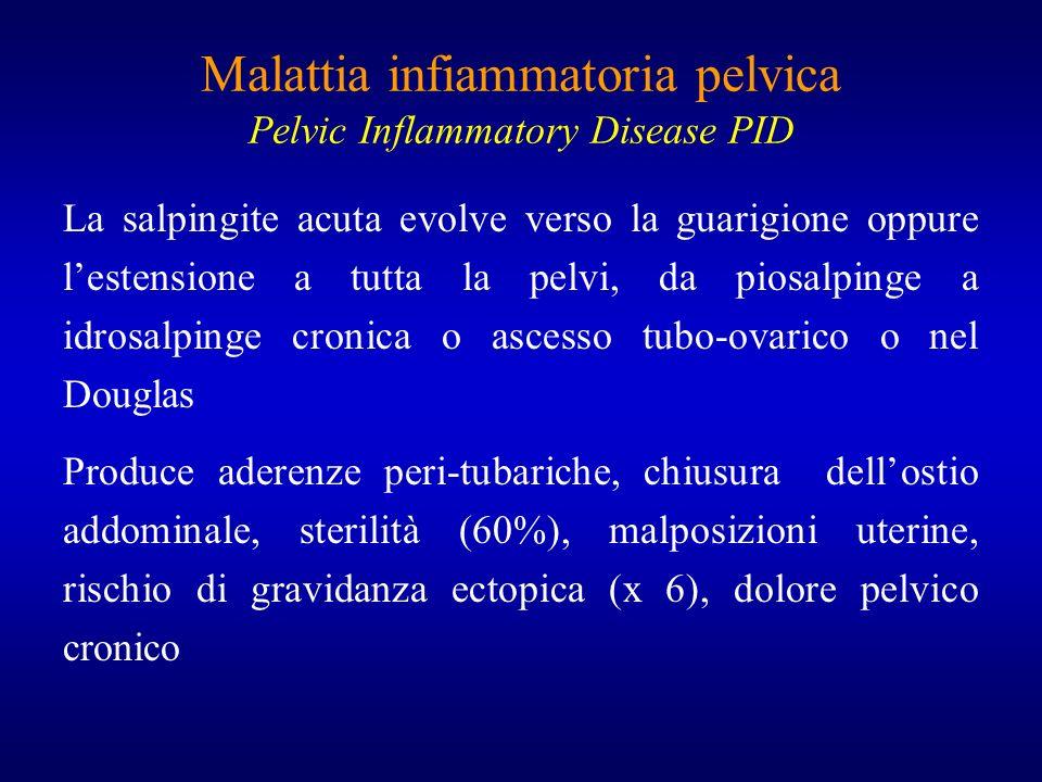 Malattia infiammatoria pelvica Pelvic Inflammatory Disease PID