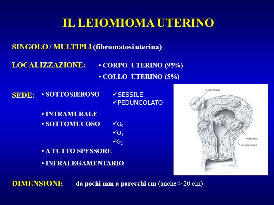 IL LEIOMIOMA UTERINO SINGOLO / MULTIPLI (fibromatosi uterina)