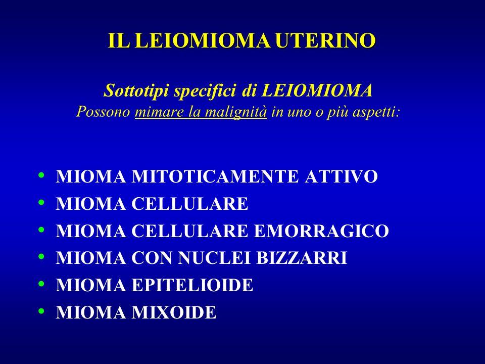 IL LEIOMIOMA UTERINOSottotipi specifici di LEIOMIOMA Possono mimare la malignità in uno o più aspetti: