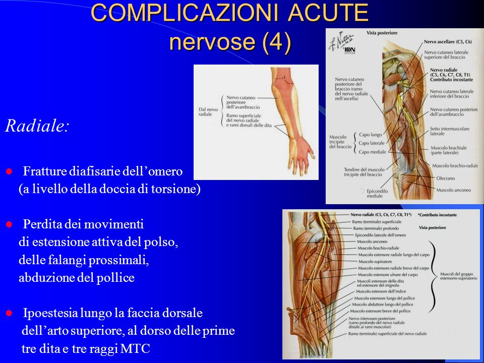 COMPLICAZIONI ACUTE nervose (4)