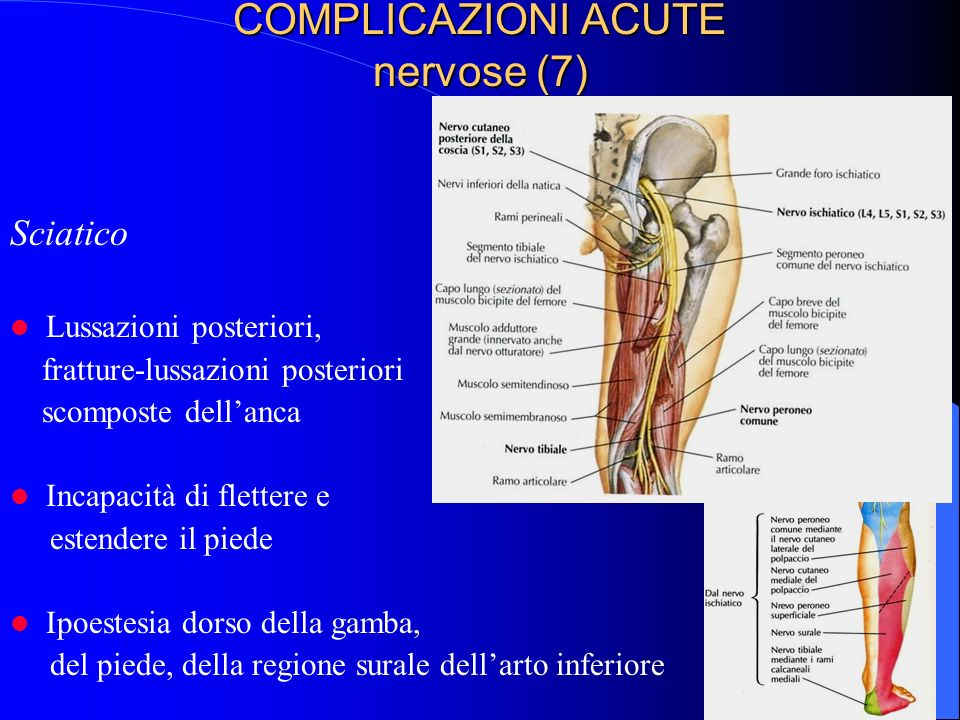 COMPLICAZIONI ACUTE nervose (7)