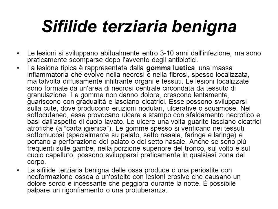 Sifilide terziaria benigna