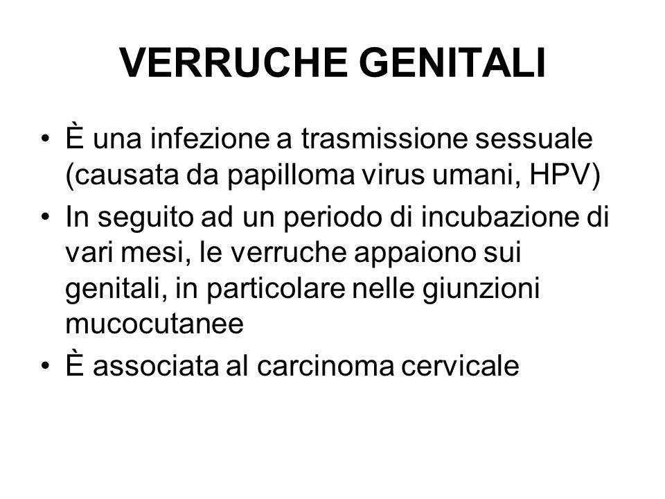 VERRUCHE GENITALI È una infezione a trasmissione sessuale (causata da papilloma virus umani, HPV)