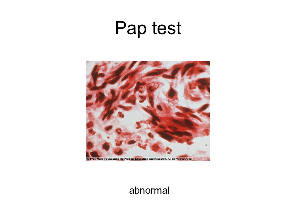 Pap test abnormal