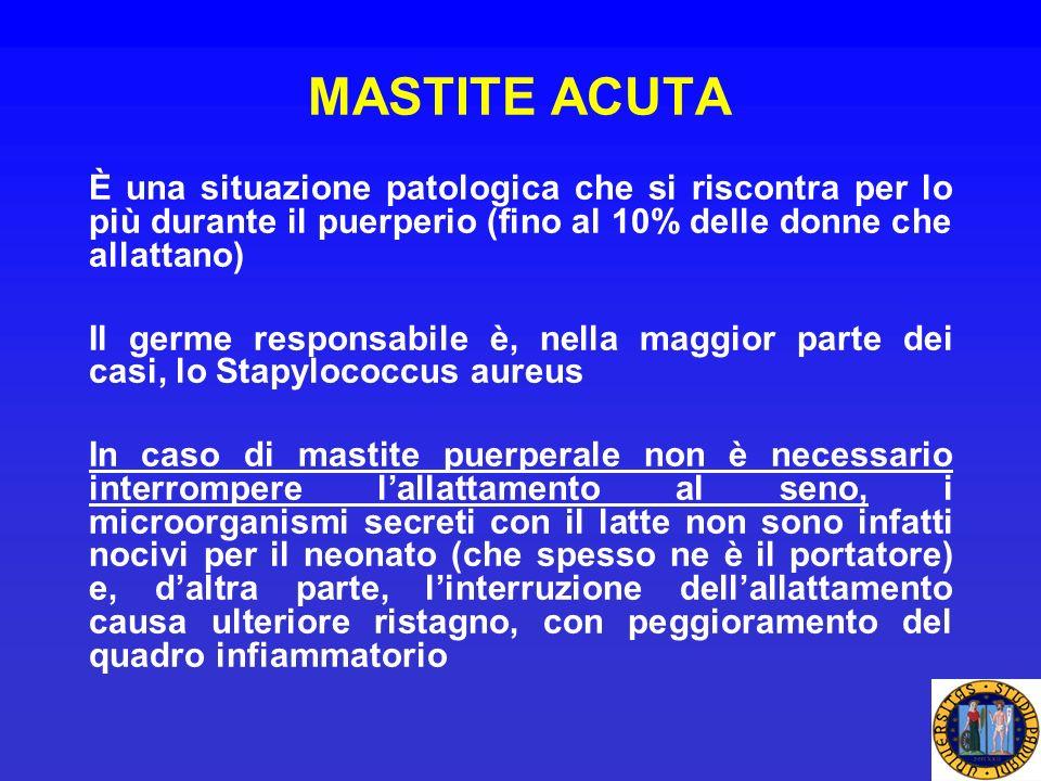 MASTITE ACUTA È una situazione patologica che si riscontra per lo più durante il puerperio (fino al 10% delle donne che allattano)