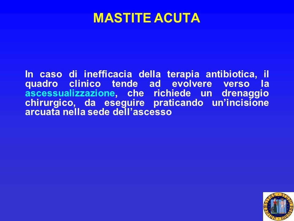 MASTITE ACUTA