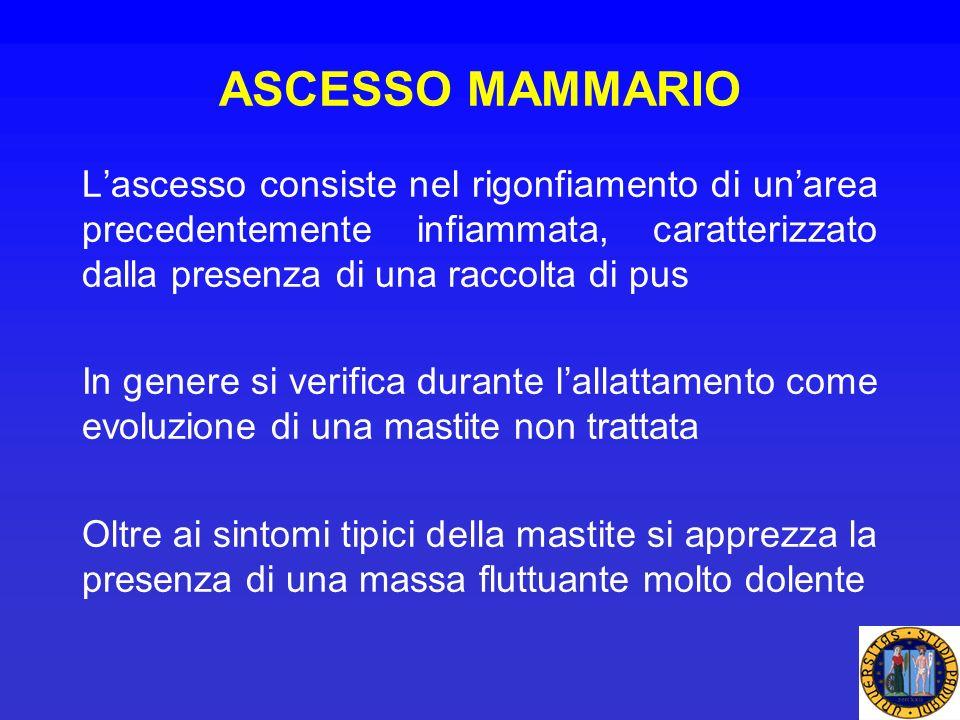 ASCESSO MAMMARIO L'ascesso consiste nel rigonfiamento di un'area precedentemente infiammata, caratterizzato dalla presenza di una raccolta di pus.