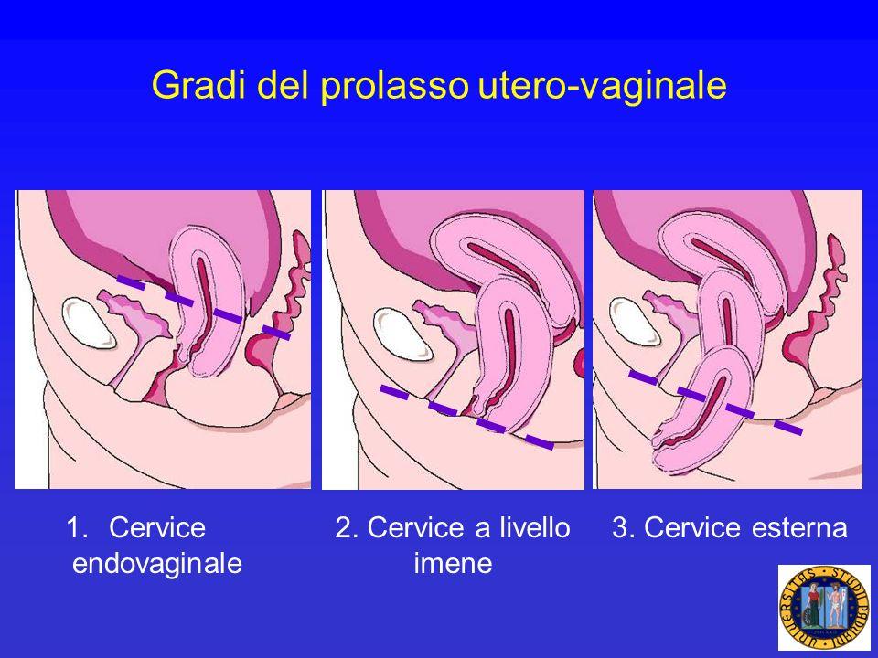 Gradi del prolasso utero-vaginale