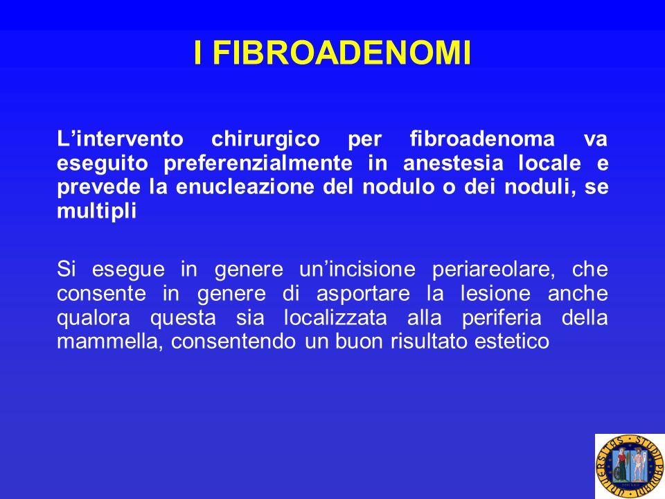 I FIBROADENOMI