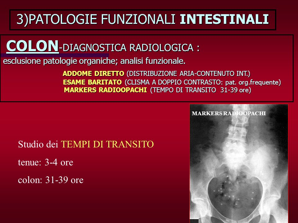 3)PATOLOGIE FUNZIONALI INTESTINALI