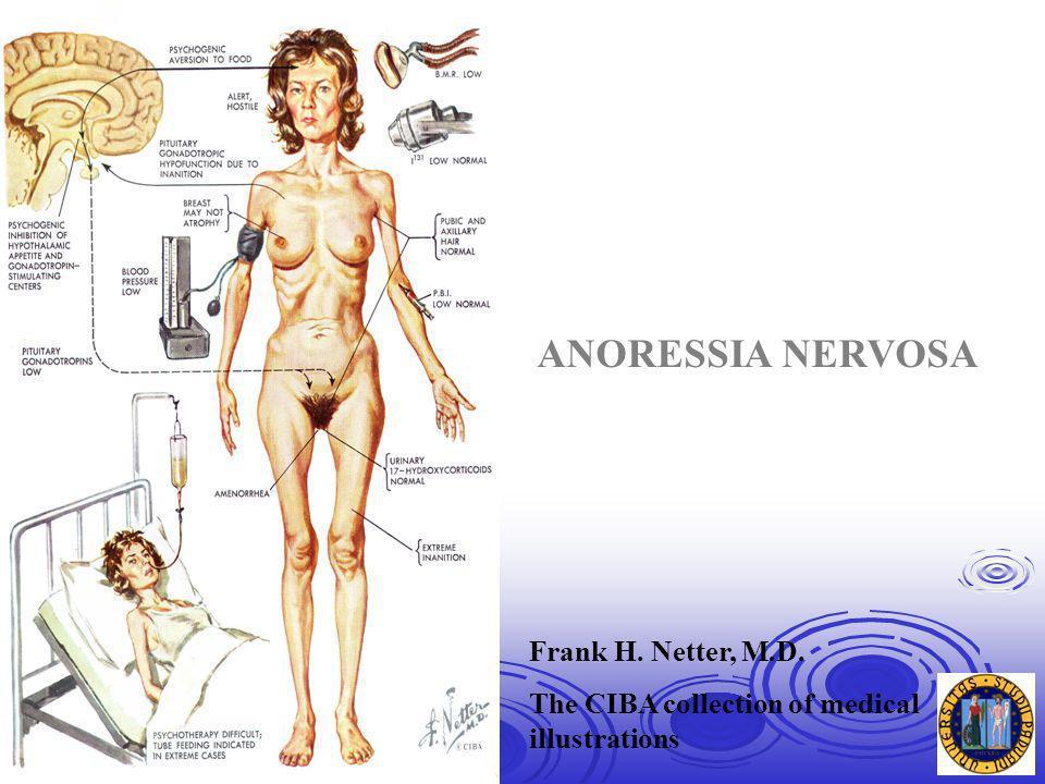 ANORESSIA NERVOSA Frank H. Netter, M.D.