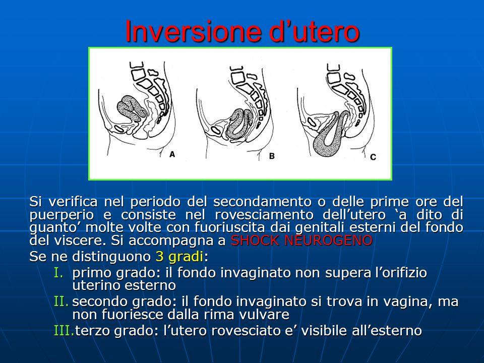 Inversione d'utero