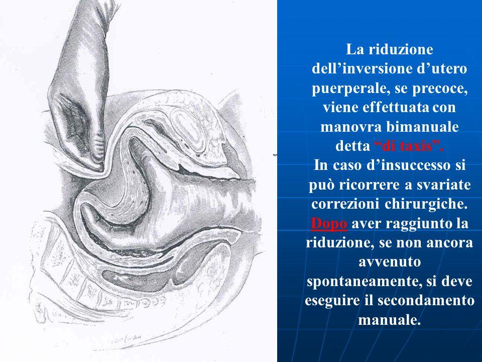 La riduzione dell'inversione d'utero puerperale, se precoce, viene effettuata con manovra bimanuale detta di taxis .