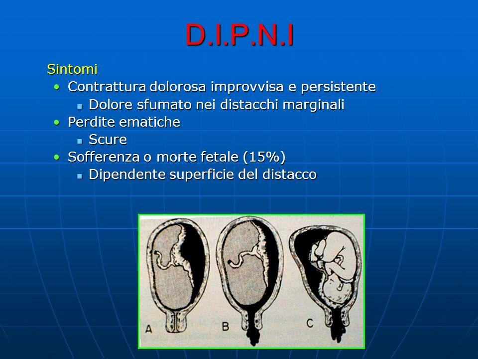D.I.P.N.I Sintomi Contrattura dolorosa improvvisa e persistente