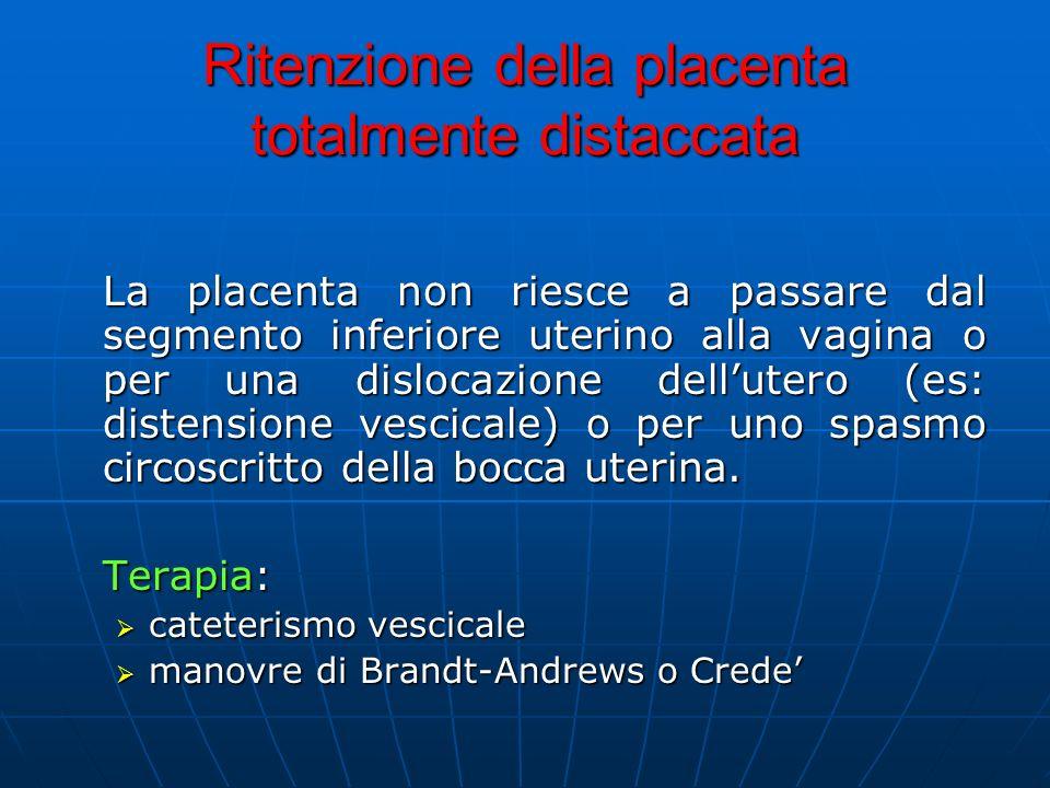 Ritenzione della placenta totalmente distaccata