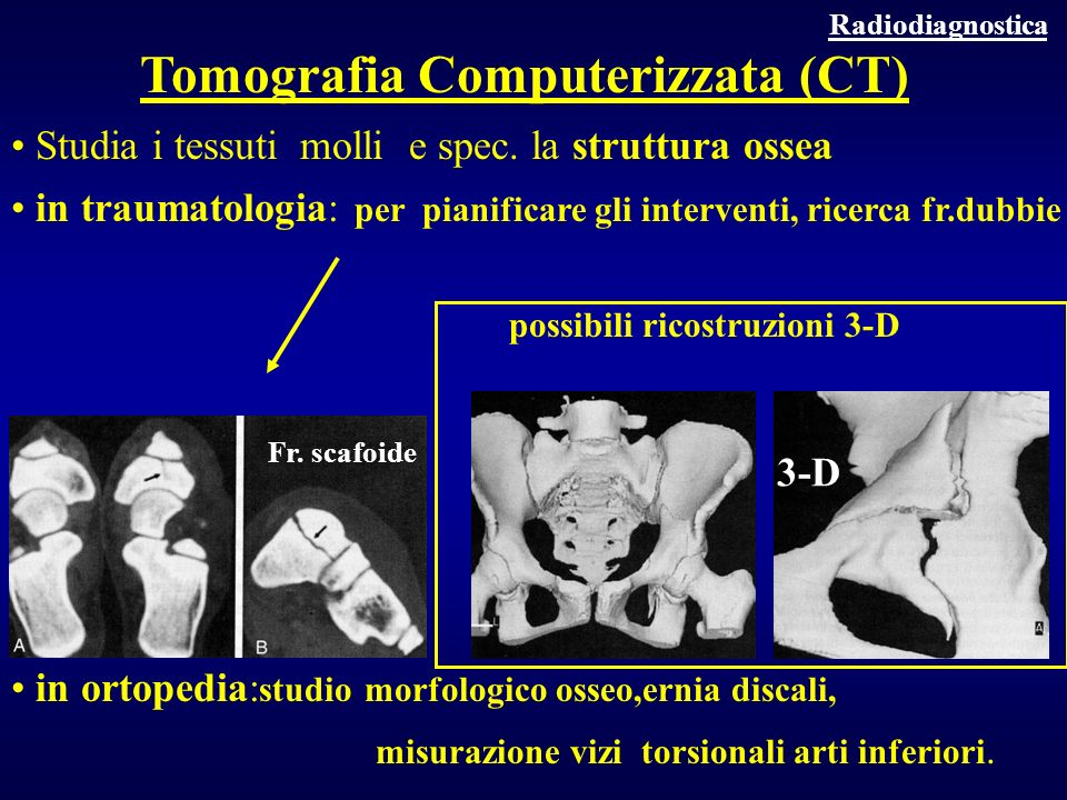 Tomografia Computerizzata (CT)
