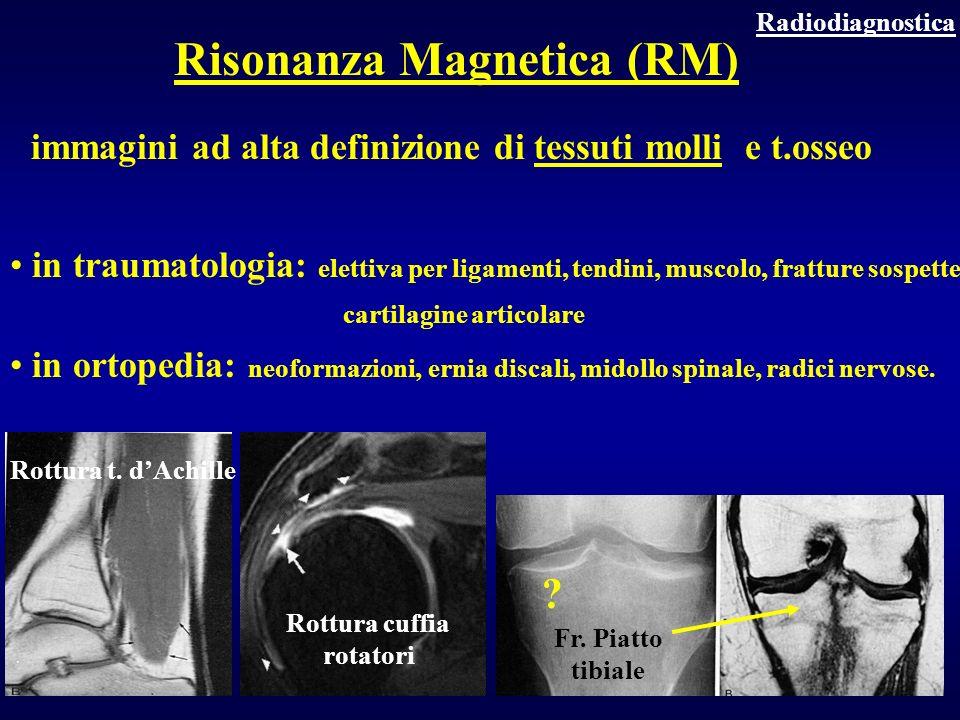Risonanza Magnetica (RM) Rottura cuffia rotatori