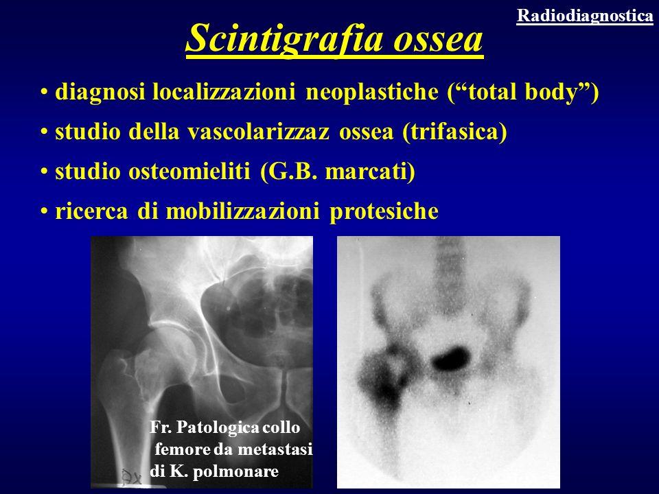 Scintigrafia ossea diagnosi localizzazioni neoplastiche ( total body )