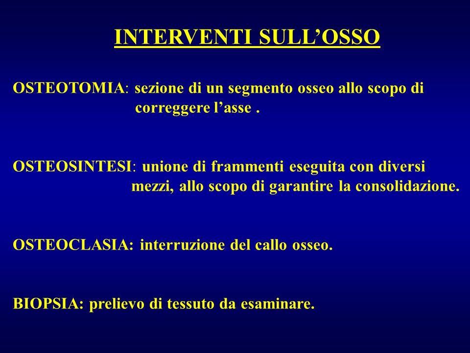 INTERVENTI SULL'OSSO OSTEOTOMIA: sezione di un segmento osseo allo scopo di. correggere l'asse .