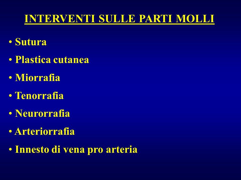 INTERVENTI SULLE PARTI MOLLI