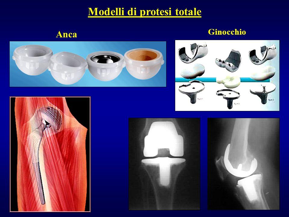 Modelli di protesi totale