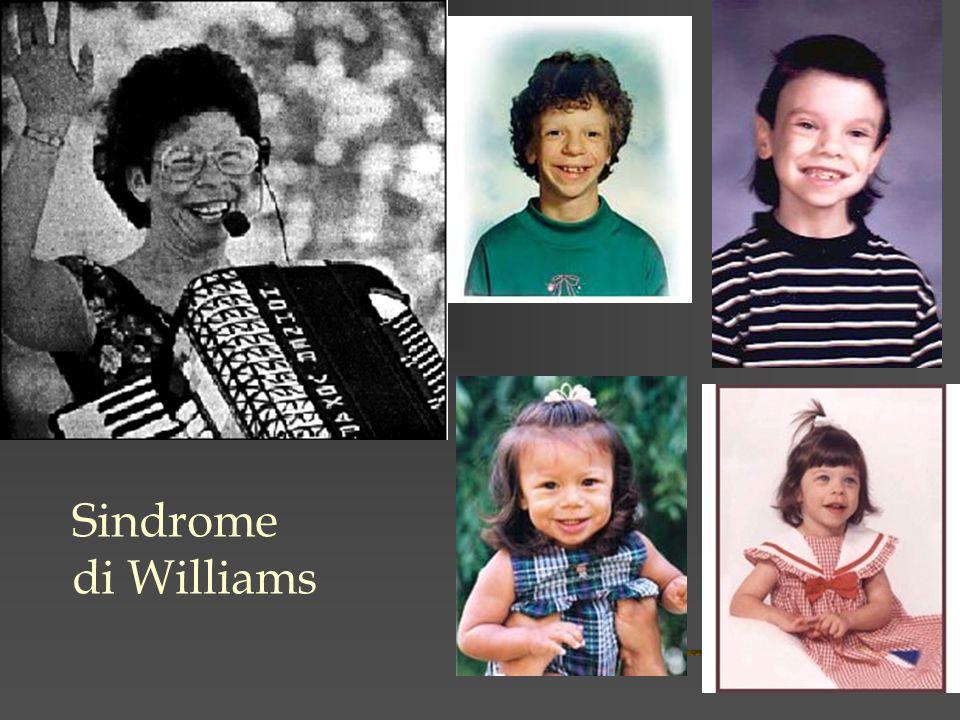 Sindrome di Williams