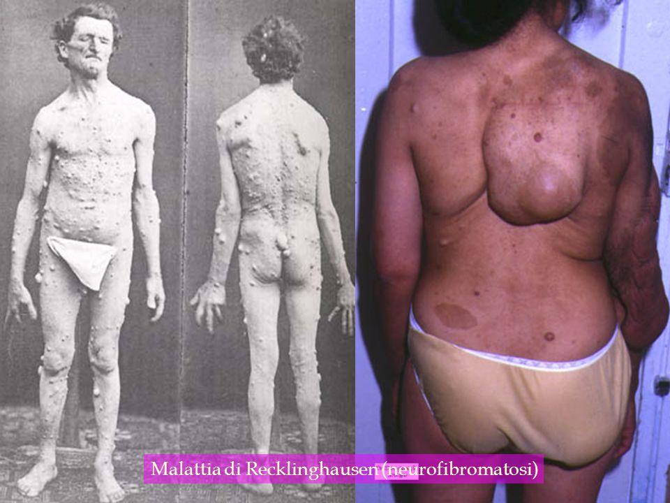 Malattia di Recklinghausen (neurofibromatosi)