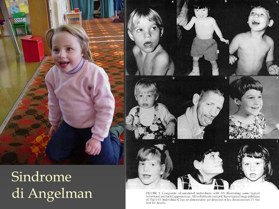 Sindrome di Angelman