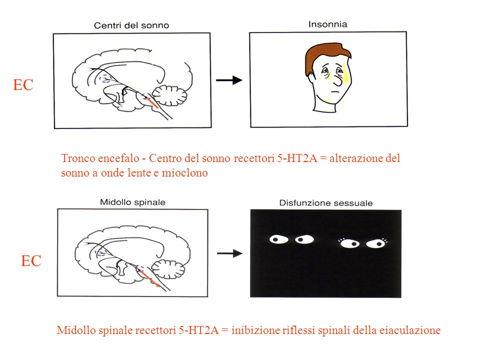 EC Tronco encefalo - Centro del sonno recettori 5-HT2A = alterazione del sonno a onde lente e mioclono.