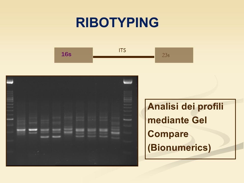 RIBOTYPING Analisi dei profili mediante Gel Compare (Bionumerics) ITS