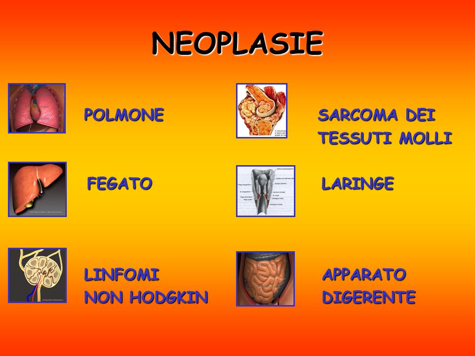 NEOPLASIE POLMONE FEGATO LINFOMI NON HODGKIN SARCOMA DEI TESSUTI MOLLI