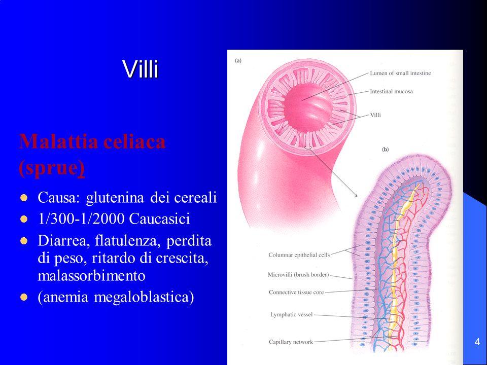 Villi Malattia celiaca (sprue) Causa: glutenina dei cereali