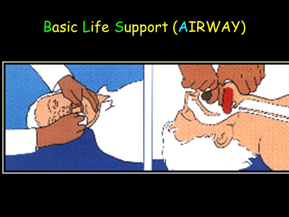 Basic Life Support (AIRWAY)