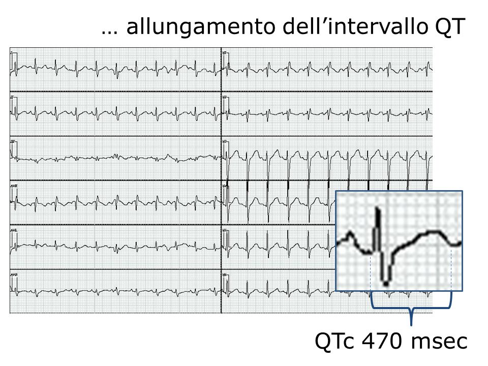 … allungamento dell'intervallo QT