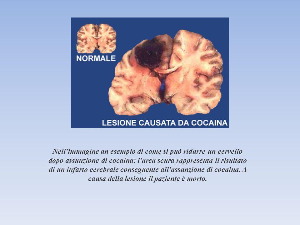 Nell immagine un esempio di come si può ridurre un cervello dopo assunzione di cocaina: l area scura rappresenta il risultato di un infarto cerebrale conseguente all assunzione di cocaina.