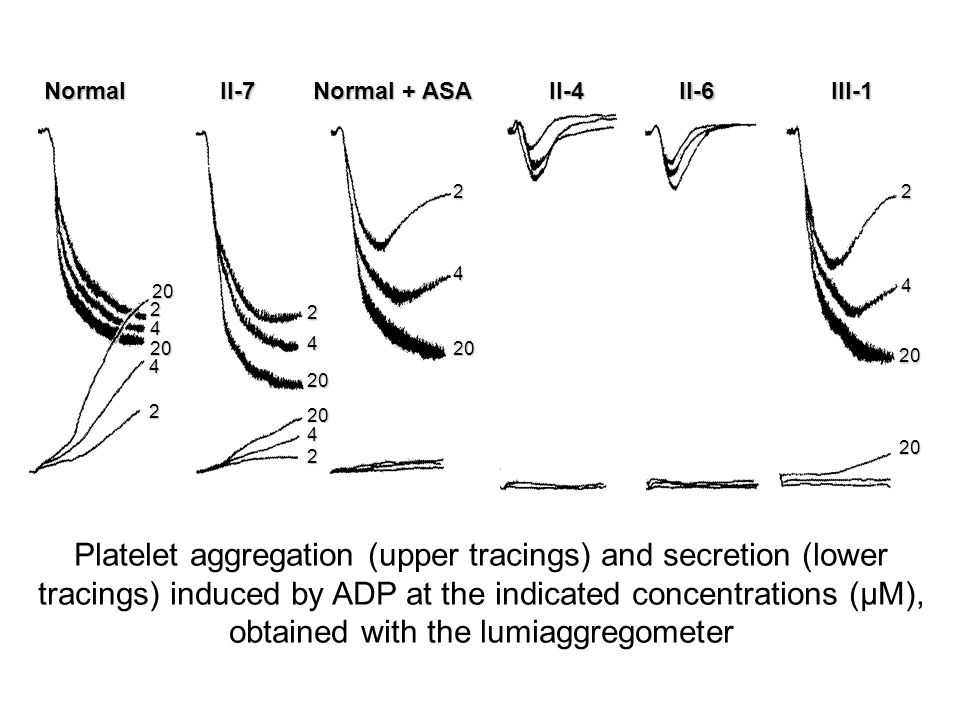 Platelet aggregation (upper tracings) and secretion (lower