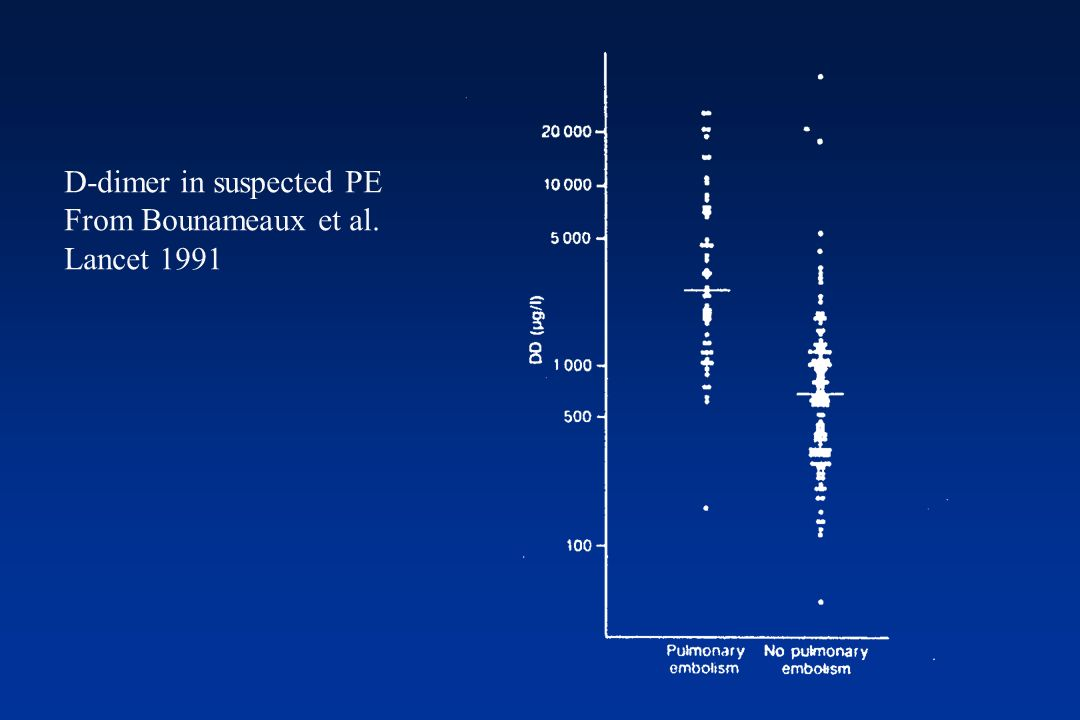 D-dimer in suspected PE From Bounameaux et al. Lancet 1991