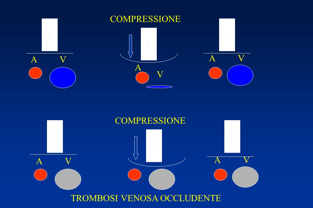 COMPRESSIONE S S S A V A V A V COMPRESSIONE S S S A V A V TROMBOSI VENOSA OCCLUDENTE