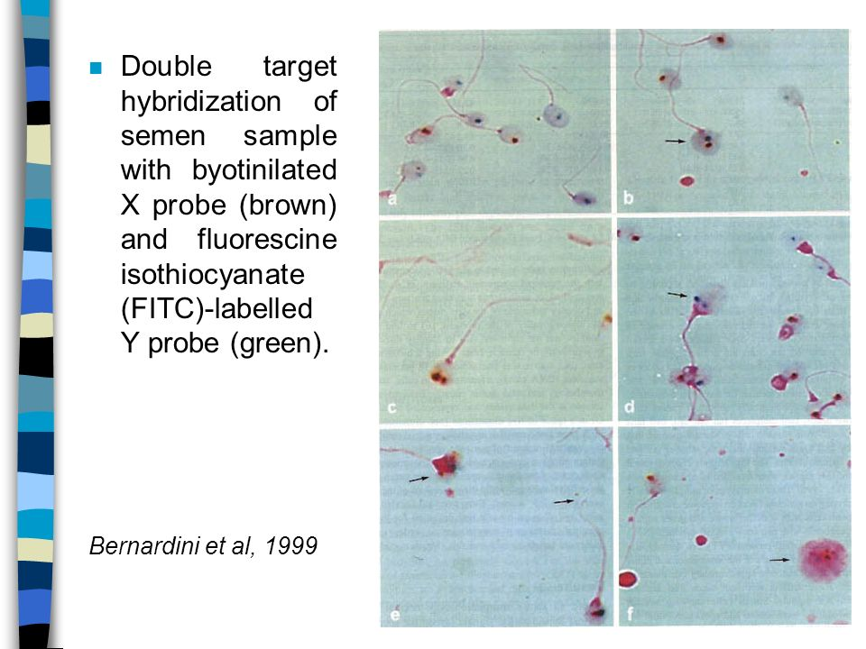 Double target hybridization of semen sample with byotinilated X probe (brown) and fluorescine isothiocyanate (FITC)-labelled Y probe (green).