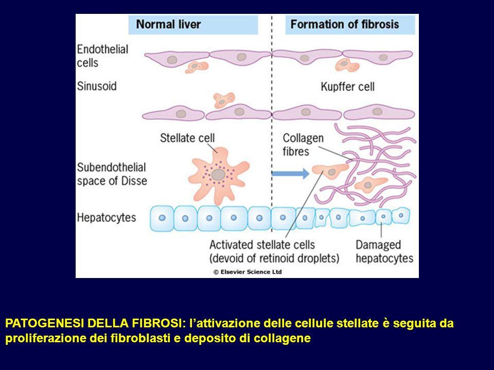 PATOGENESI DELLA FIBROSI: l'attivazione delle cellule stellate è seguita da proliferazione dei fibroblasti e deposito di collagene