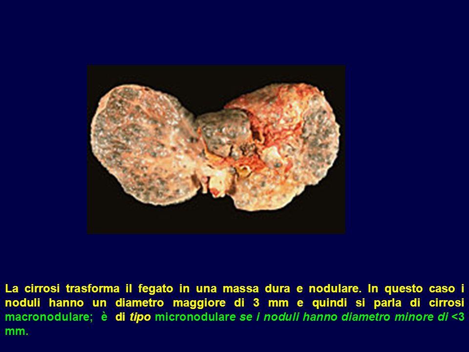 La cirrosi trasforma il fegato in una massa dura e nodulare