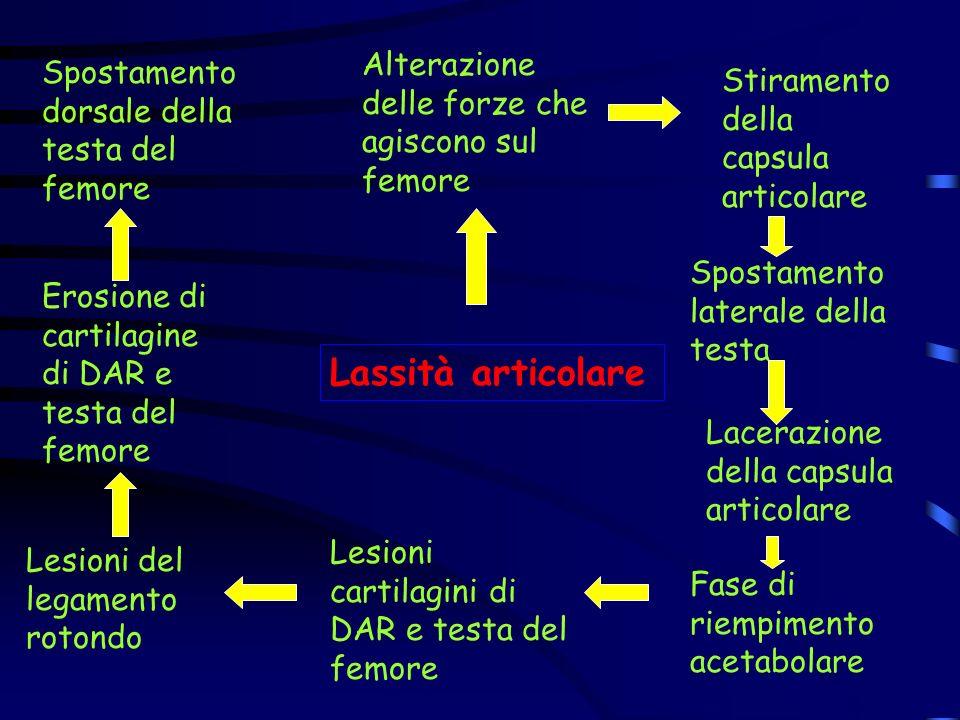 Lassità articolare Alterazione delle forze che agiscono sul femore