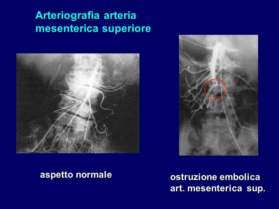 Arteriografia arteria mesenterica superiore