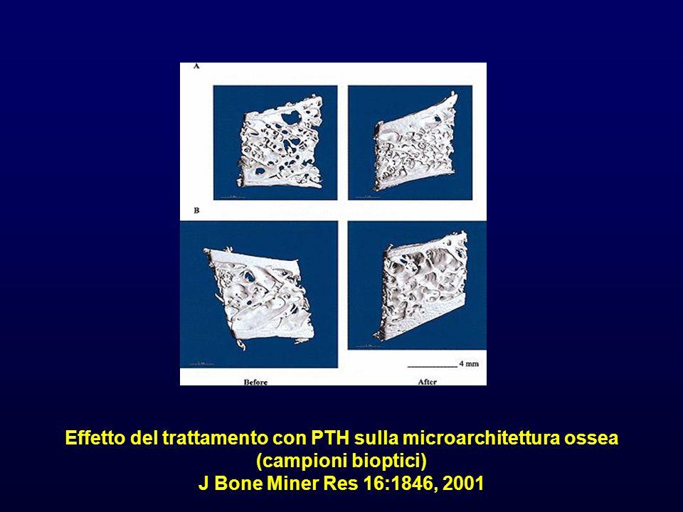 Effetto del trattamento con PTH sulla microarchitettura ossea