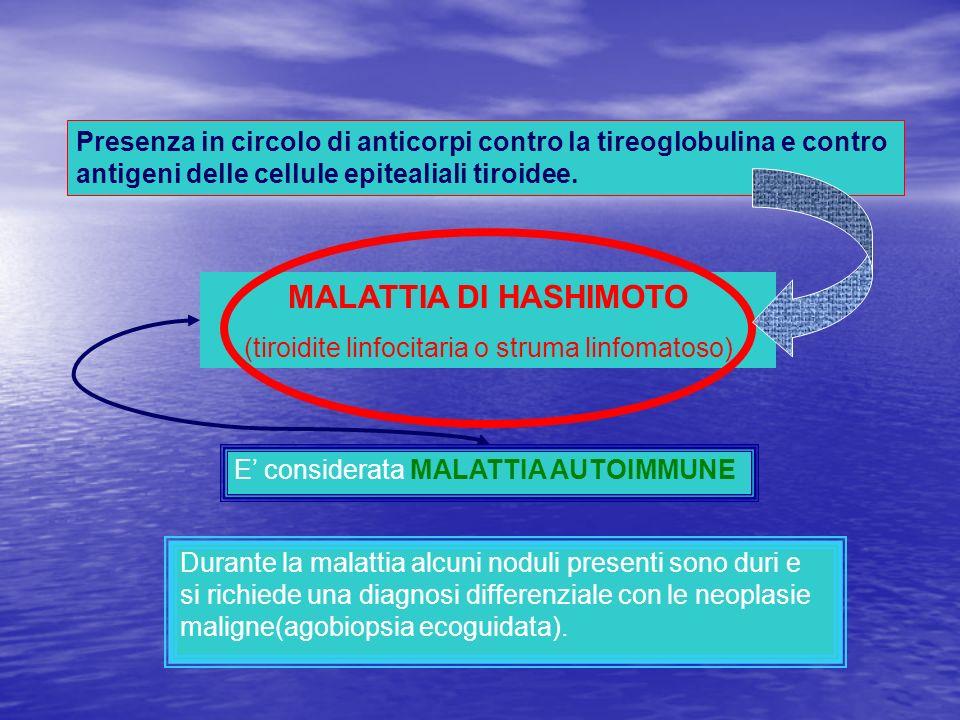 (tiroidite linfocitaria o struma linfomatoso)