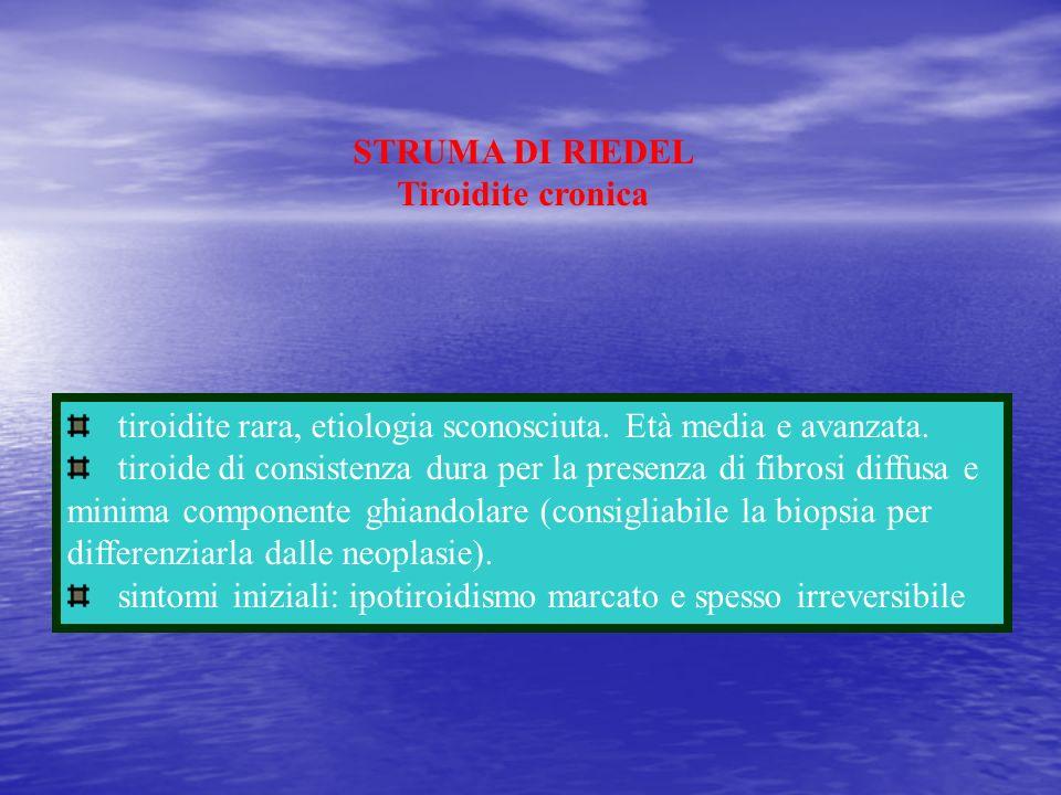 STRUMA DI RIEDELTiroidite cronica. tiroidite rara, etiologia sconosciuta. Età media e avanzata.