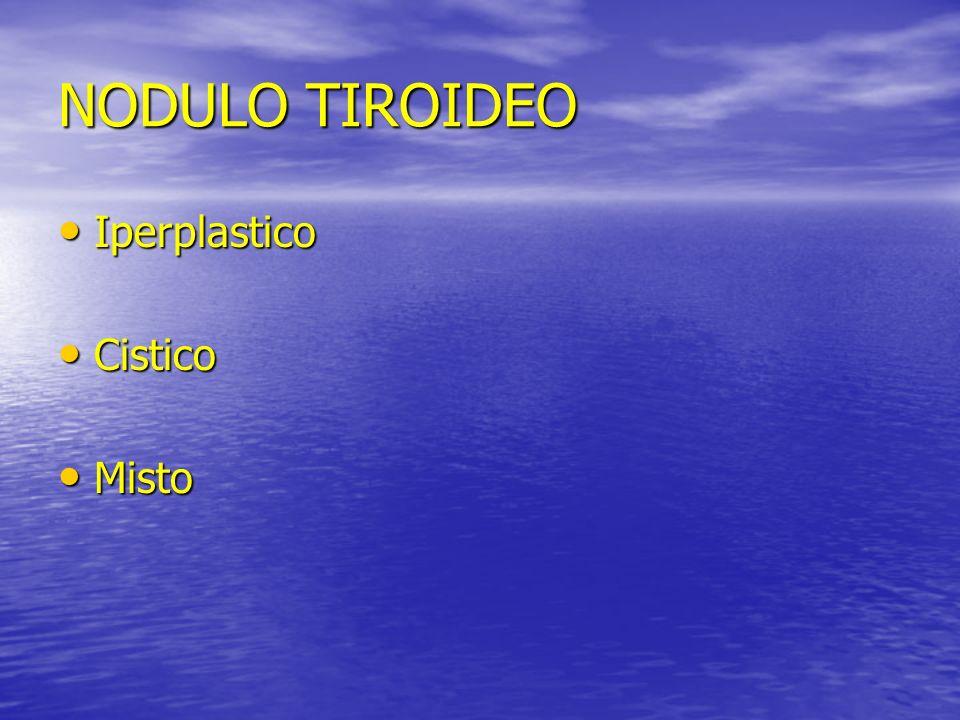NODULO TIROIDEO Iperplastico Cistico Misto