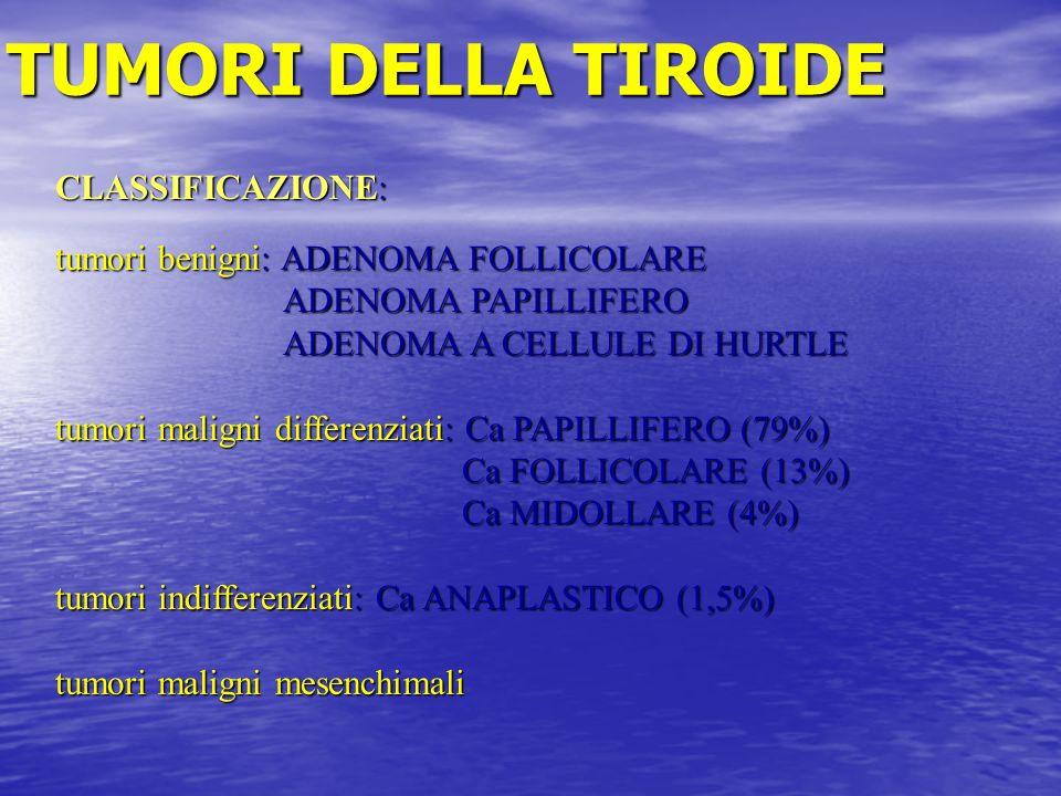 TUMORI DELLA TIROIDE CLASSIFICAZIONE: