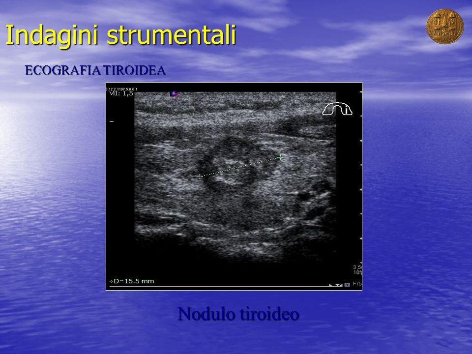 Indagini strumentali ECOGRAFIA TIROIDEA Nodulo tiroideo