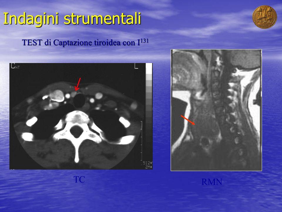 Indagini strumentali TEST di Captazione tiroidea con I131 TC RMN